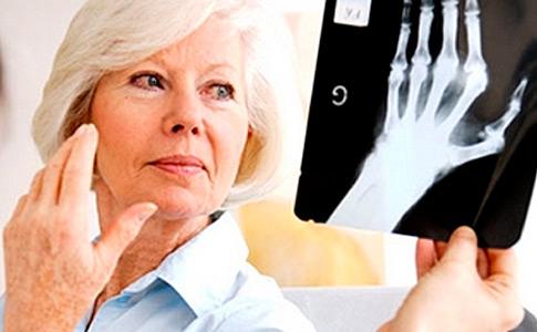 tratamentul periei fracturilor articulare