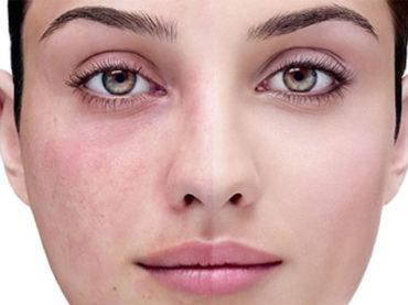 Acne, rosacea, dermatiti… le novità per la pelle