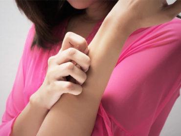 Orticaria cronica: diagnosi difficile, ma oggi c'è la cura