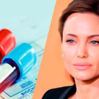 """""""Effetto Jolie"""": gli oncologi Aiom a favore del test Brca"""