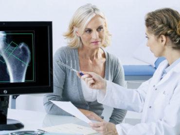 Come prevenire il rischio di osteoporosi secondaria, dopo un tumore al seno