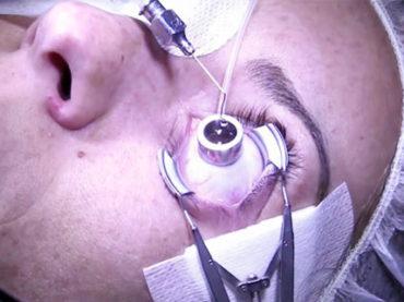 L'occhio non invecchia con le tecnologie hi-tech