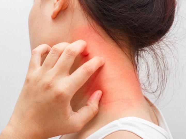 Sintomi e disagi della dermatite atopica: vincerli è possibile
