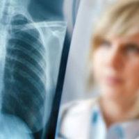 """Malattie respiratorie femminili, quelle """"sconosciute"""""""