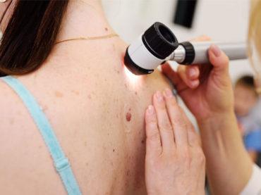 Melanoma: presentate all'ASCO nuove terapie per pazienti ad alto rischio di recidiva