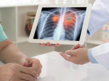 Tumore del polmone: l'immunoterapia può diventare una cura