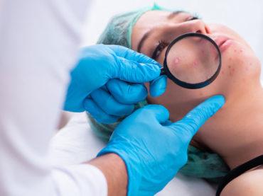 """Il dermatologo deve saper andare """"sotto la pelle"""" del paziente"""