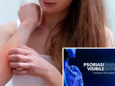 PsoPoint, la piattaforma che connette dermatologi e pazienti con psoriasi