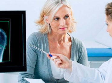 Report sull'osteoporosi: una donna su tre ha una frattura da fragilità ossea
