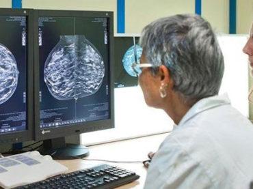 Aumenta del 70% la sopravvivenza nel tumore al seno avanzato