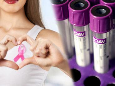 Test genetico BRCA: anche alle donne sane, con familiari malati?