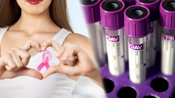 tumore alla prostata e ereditsdrio nelle donne