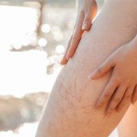 Gambe in estate: attenzione alla malattia venosa cronica
