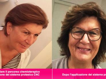 Alopecia da chemio: un innovativo sistema protesico migliora il benessere psicologico