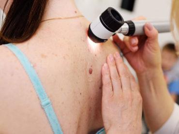 Melanoma: più del 50% dei pazienti vive grazie a due farmaci immunoterapici