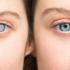 Con l'intervento di cataratta si possono risolvere anche altri difetti visivi